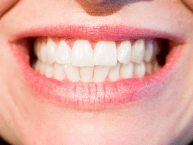 Jak wybielić zęby w domu? Proste sposoby na białe zęby